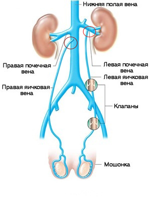 varikotsele-vosstanovlenie-spermatogeneza