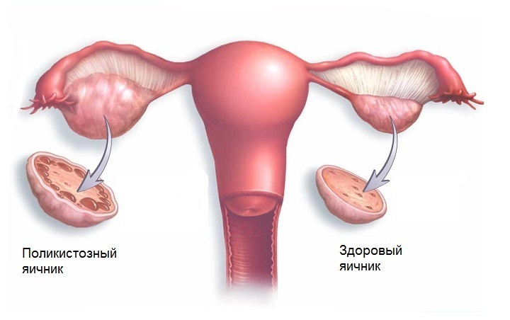 Поликистоз яичников: симптомы, лечение и диагностика СПКЯ, цена в Москве - Нова Клиник