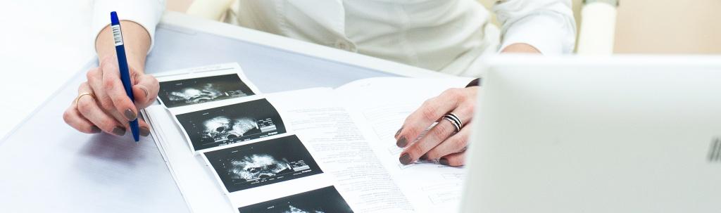 Возможна ли беременность при кисте яичника